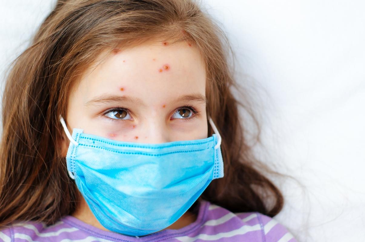 varicella: epidemiologia