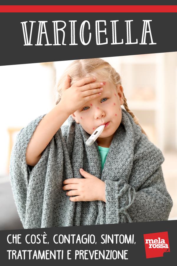varicella: sintomi e trattamenti