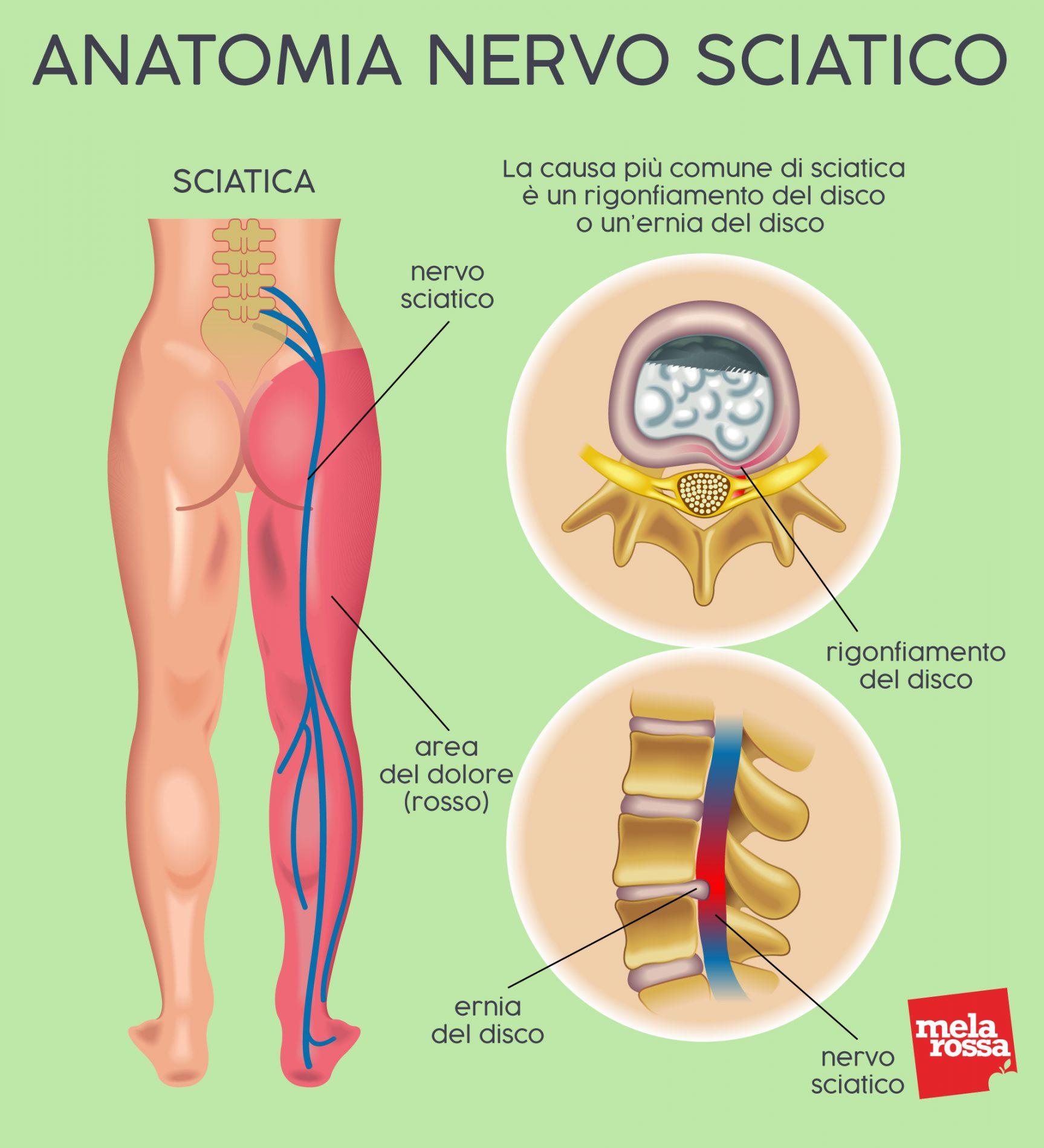anatomia del nervo sciatico