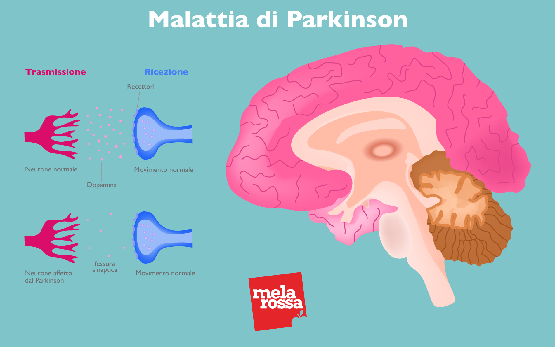 malattia di parkison: cervello