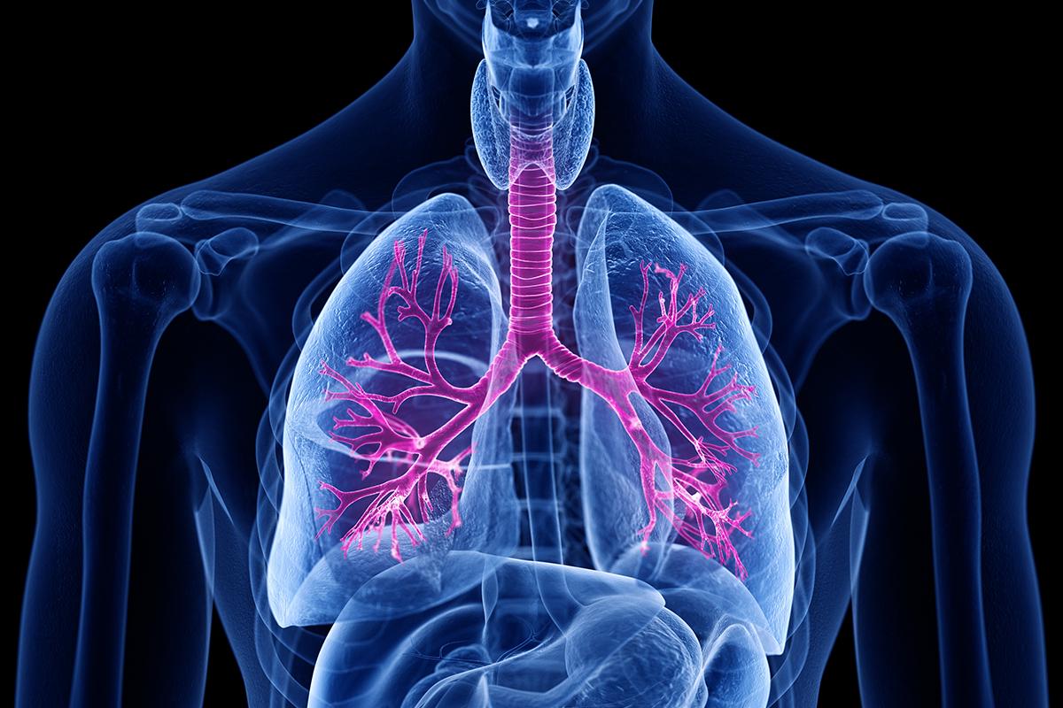 Bronchite: processo infiammatorio