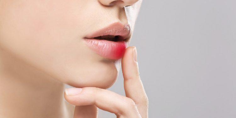 Cerotti, integratori, stick per le labbra: 8 alleati contro l'herpes labiale