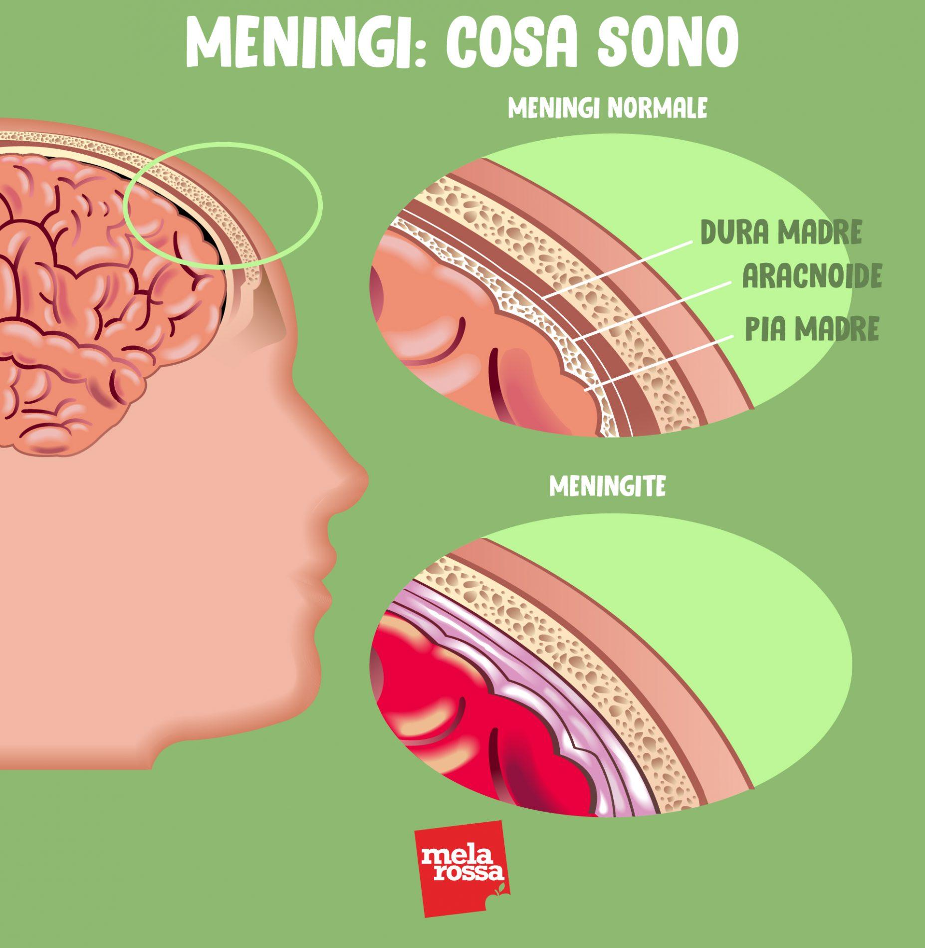 meningi e meningite