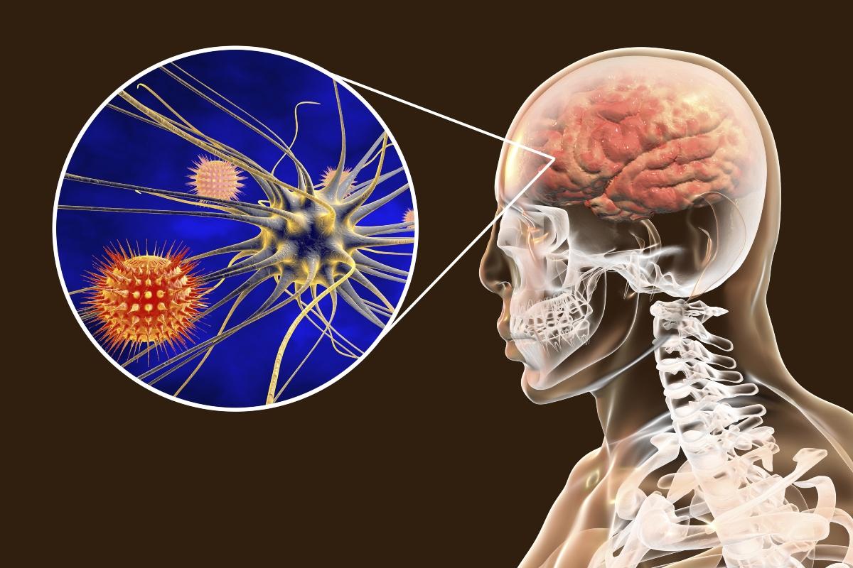 meningite: anatomia