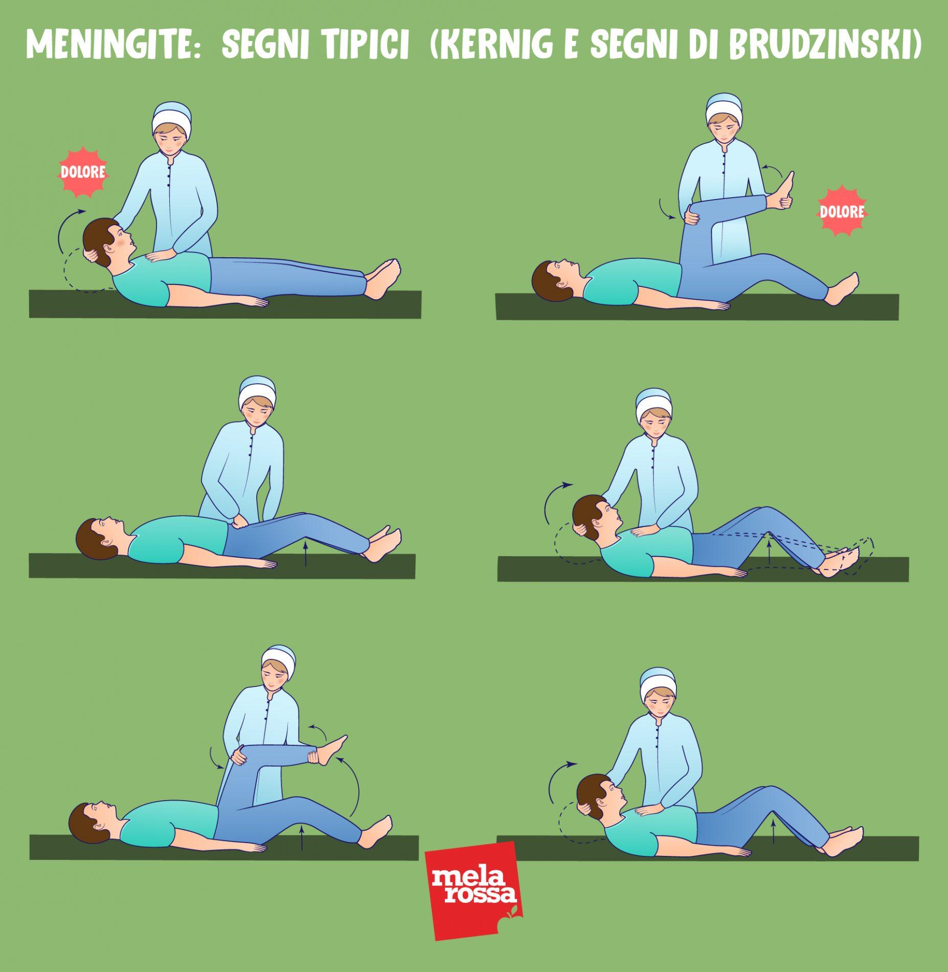 meningite: segni tipici della malattia