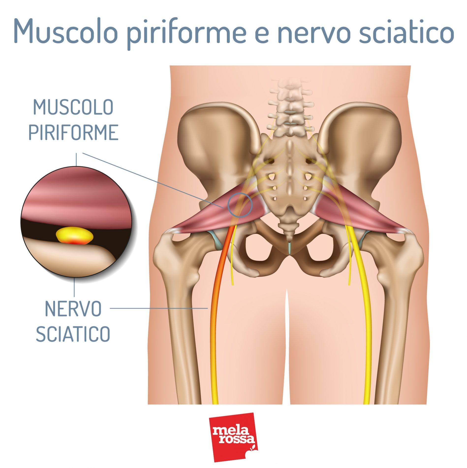 Muscolo piriforme e nervo sciatico