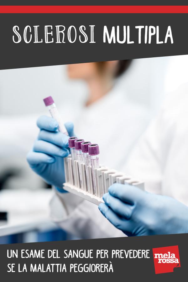 sclerosi multipla esame prevede peggioramento