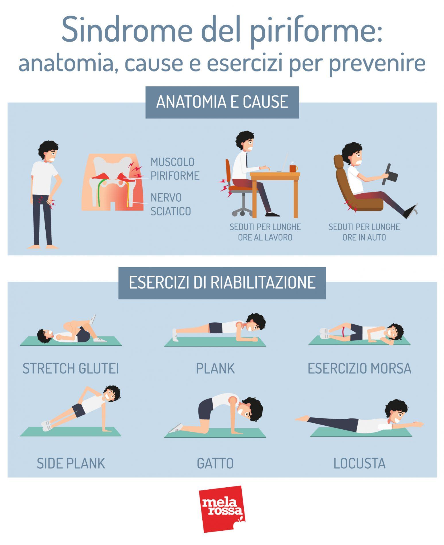 sindrome del piriforme: anatomia, cause e esercizi