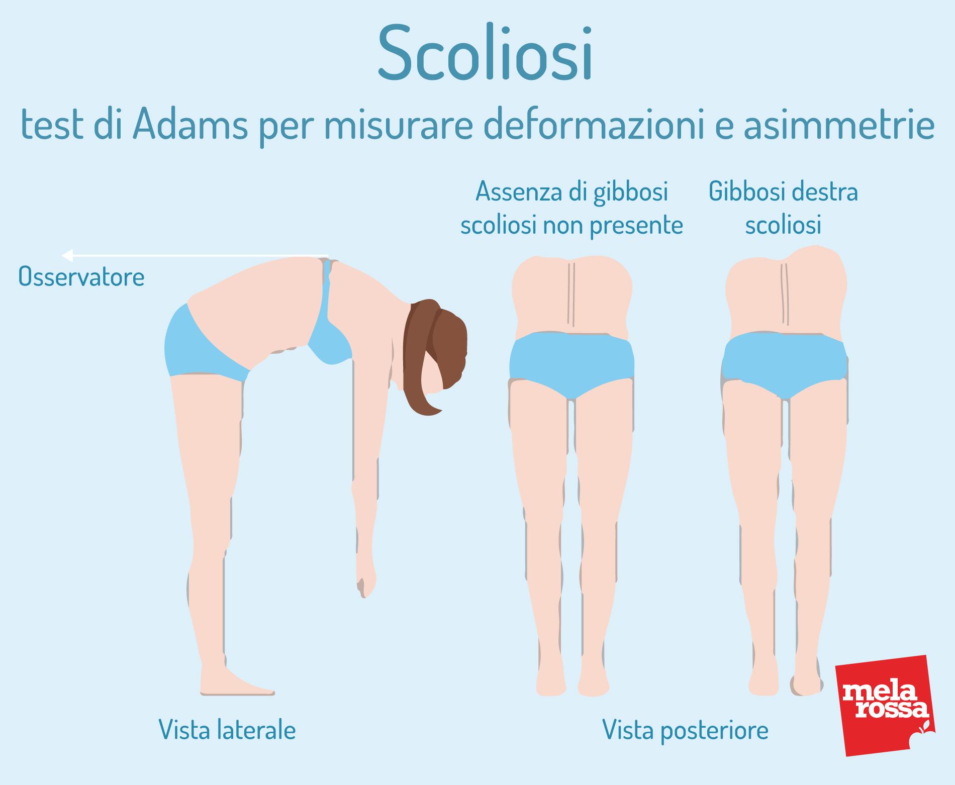 Scoliosi: test di Adams per misurare deformzioni