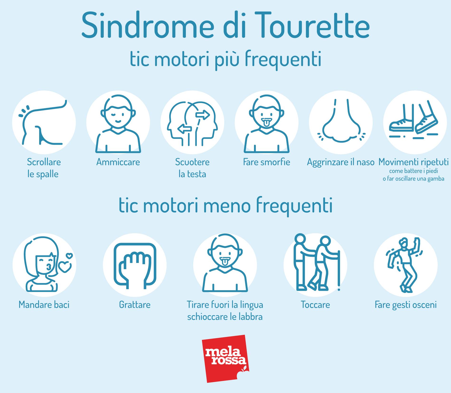 Sindrome di Tourette e tic motori