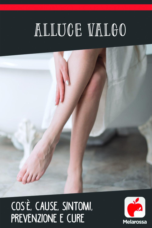 Alluce valgo: cos'è, cause, sintomi, prevenzione e cure