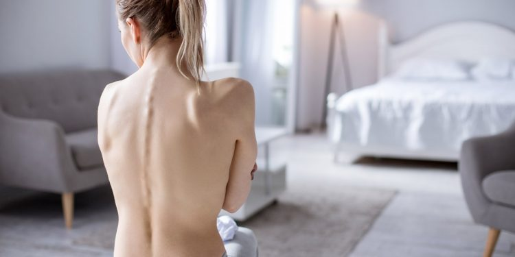 Anoressia, c'è un'arma in più: scoperto gene da colpire coi farmaci per combatterla