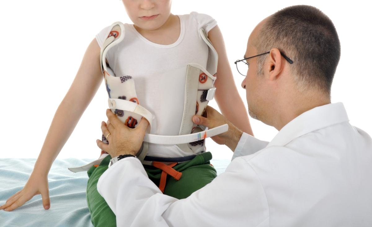 scoliosi:corsetto ortopedico