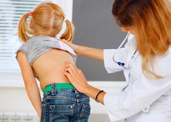 scoliosi: cos'è, cause, sintomi e cura