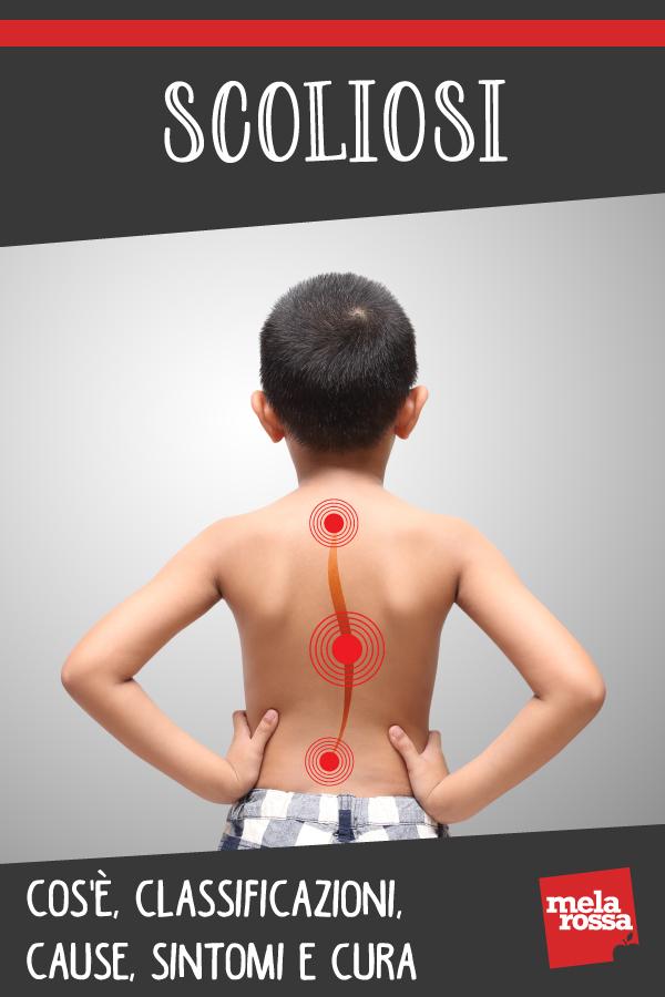 Scoliosi: cos'è, cause, sintomi e cure