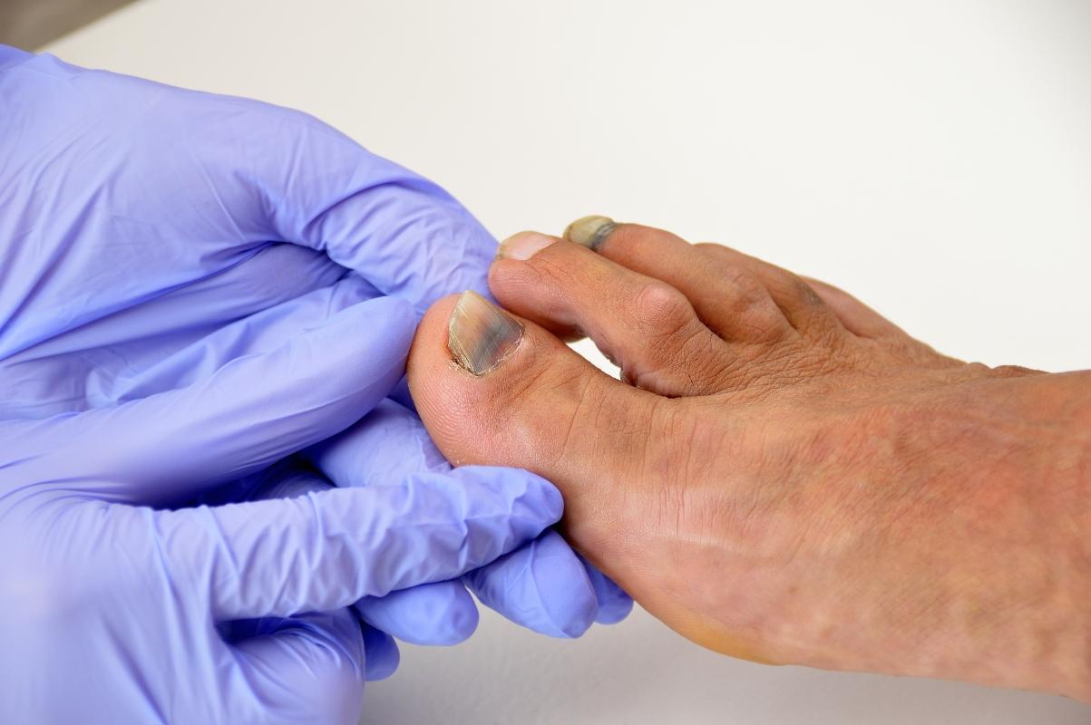 Onicomicosi: diagnosi e cura