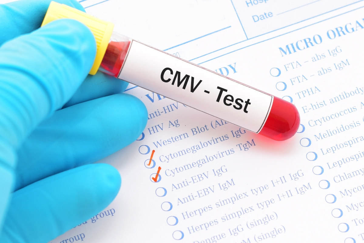 citomegalovirus:test
