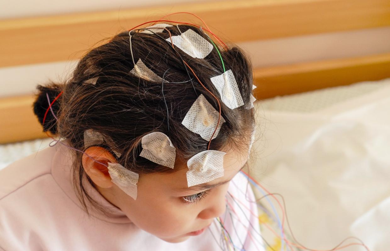 epilepsia: cause