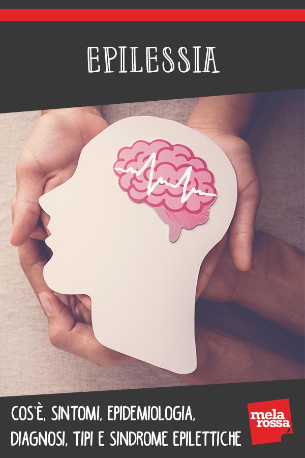 epilesssia: cos'è, cause, sintomi, come comportarsi e cure