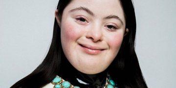 Ellie Goldstein, una bellezza non convenzionale per Gucci: la modella con sindrome di Down nuovo testimonial beauty