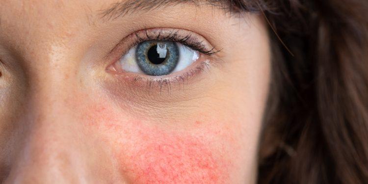 lupus eritematoso sistemico: cause, sintomi e cure