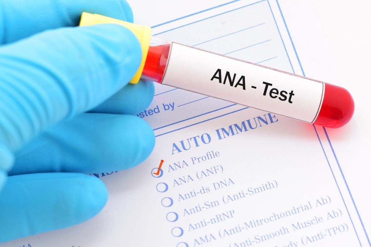 lupus: esami da fare