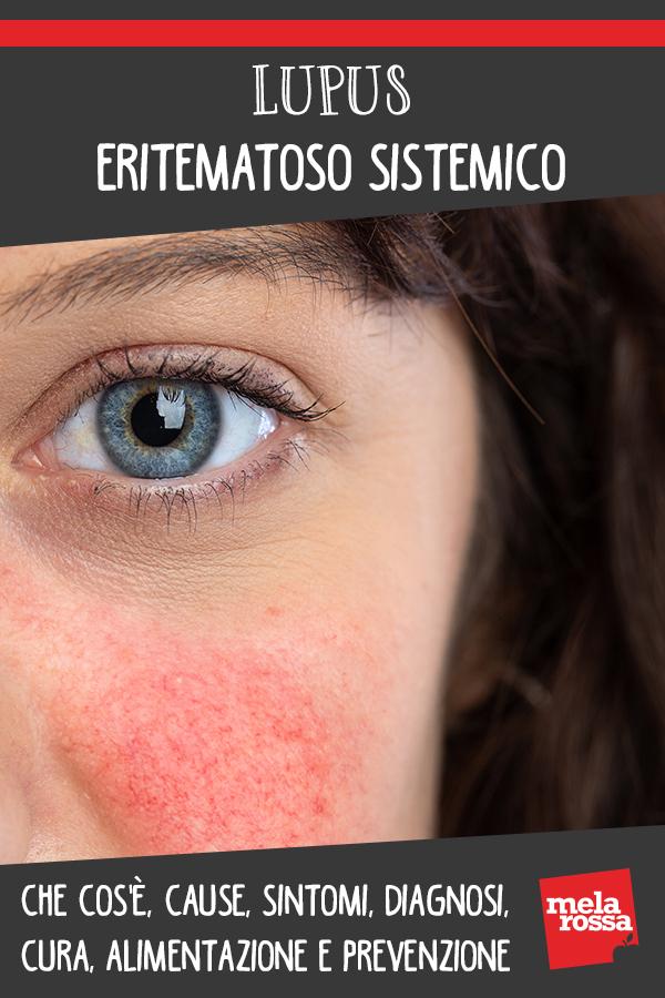 lupus eritematoso sistemico: cos'è, cause, sintomi, cura e prevenzione