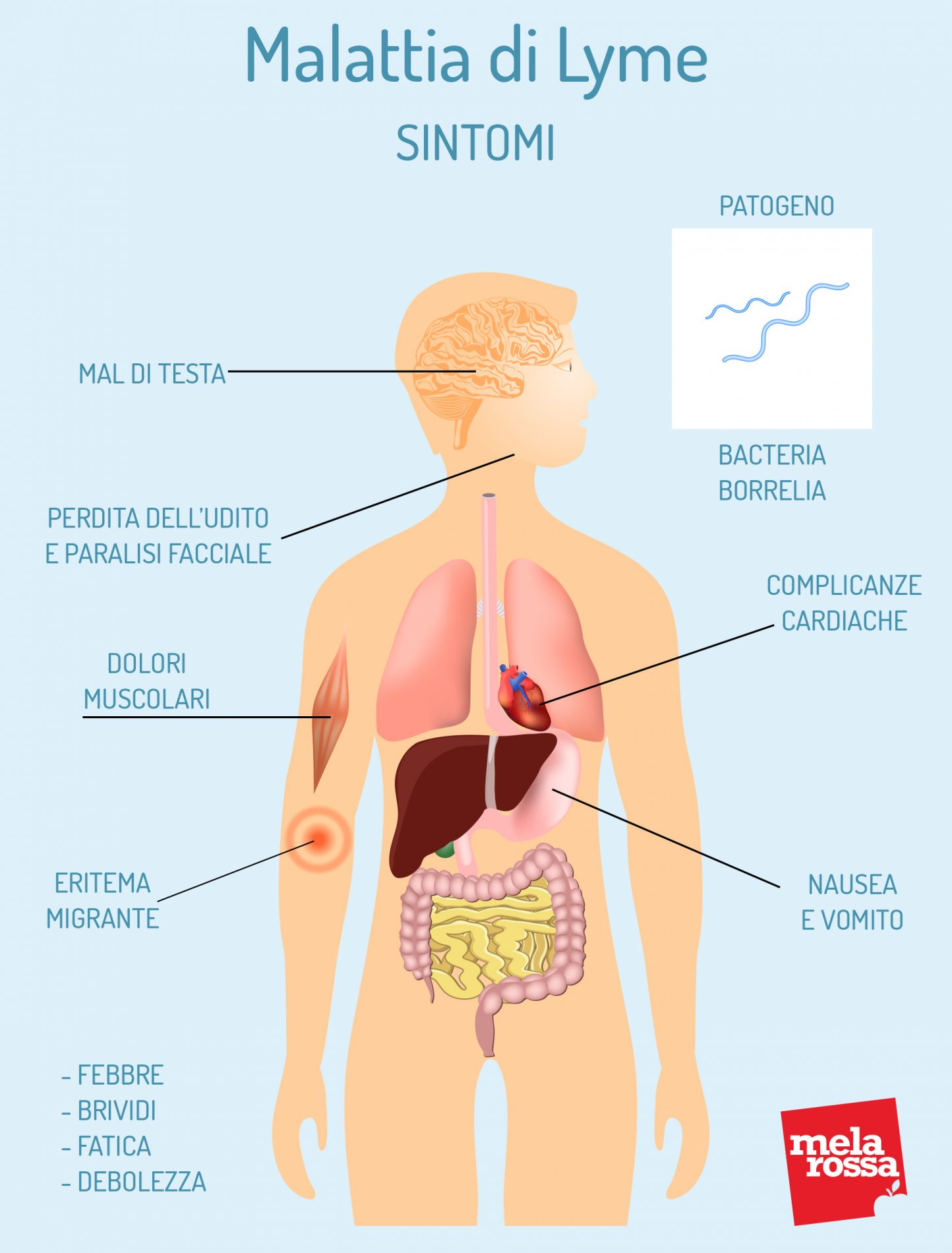 malattia di Lyme: sintomi