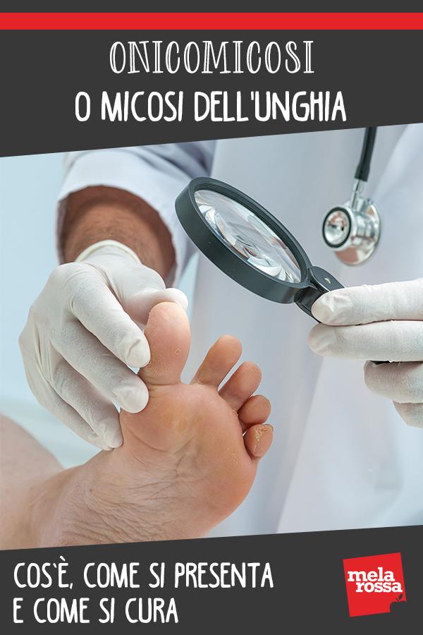 Onicomicosi o micosi dell'unghia: cos'è, come si presenta e come si cura
