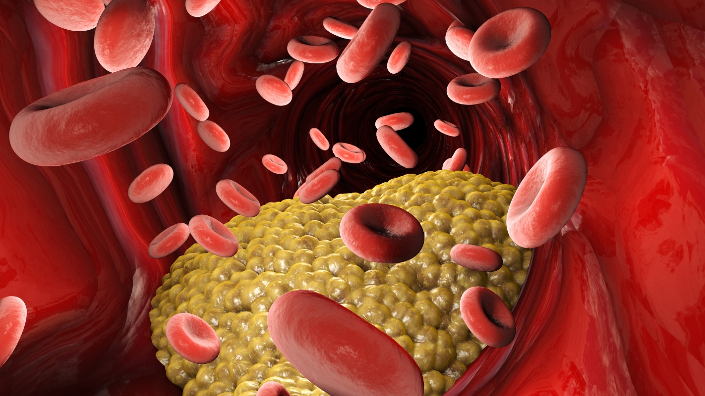 trigliceridi alti: sintomi
