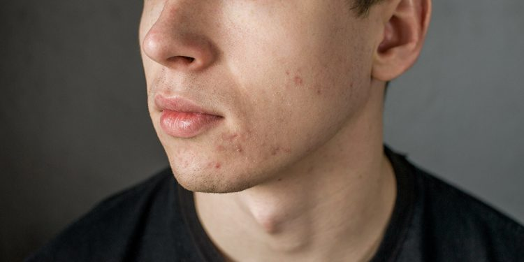 L'acne, come si manifesta