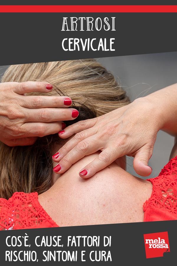 artrosi cervicale: cos'è, cause e sintomi