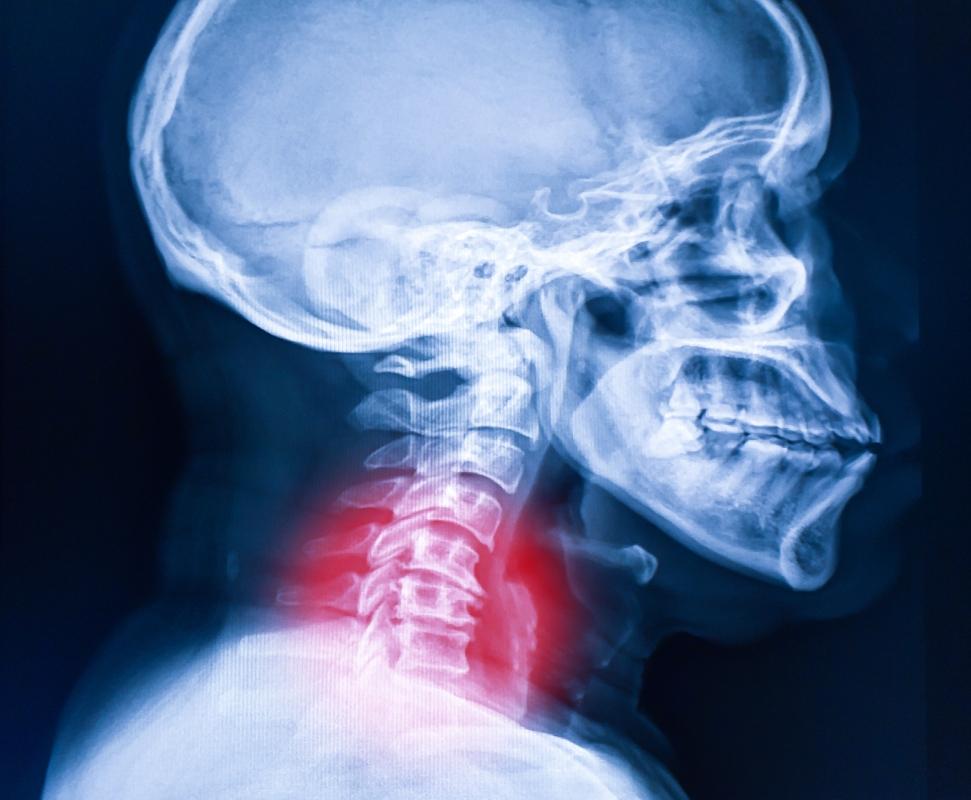 artrosi cervicale, cos'è