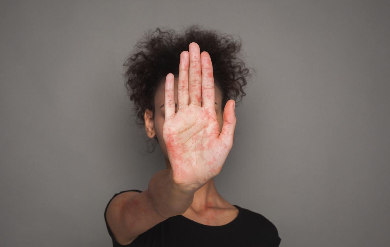 quinta malattia: Sindrome dei guanti e delle calze rosse