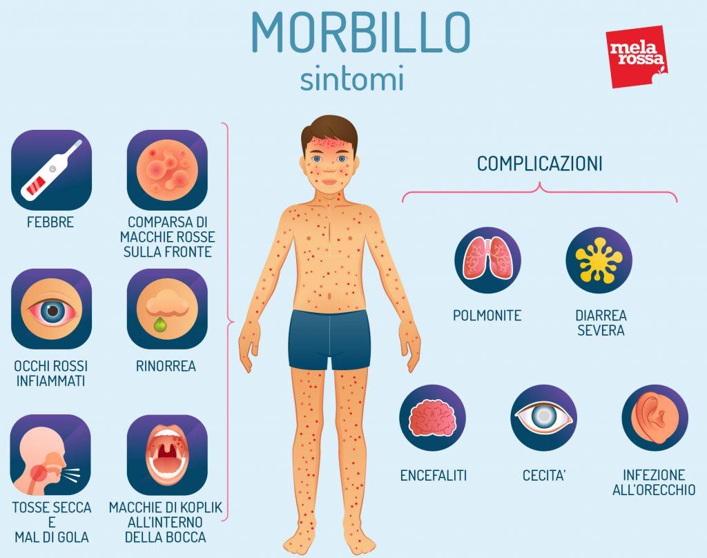 malattie esantematiche: morbillo