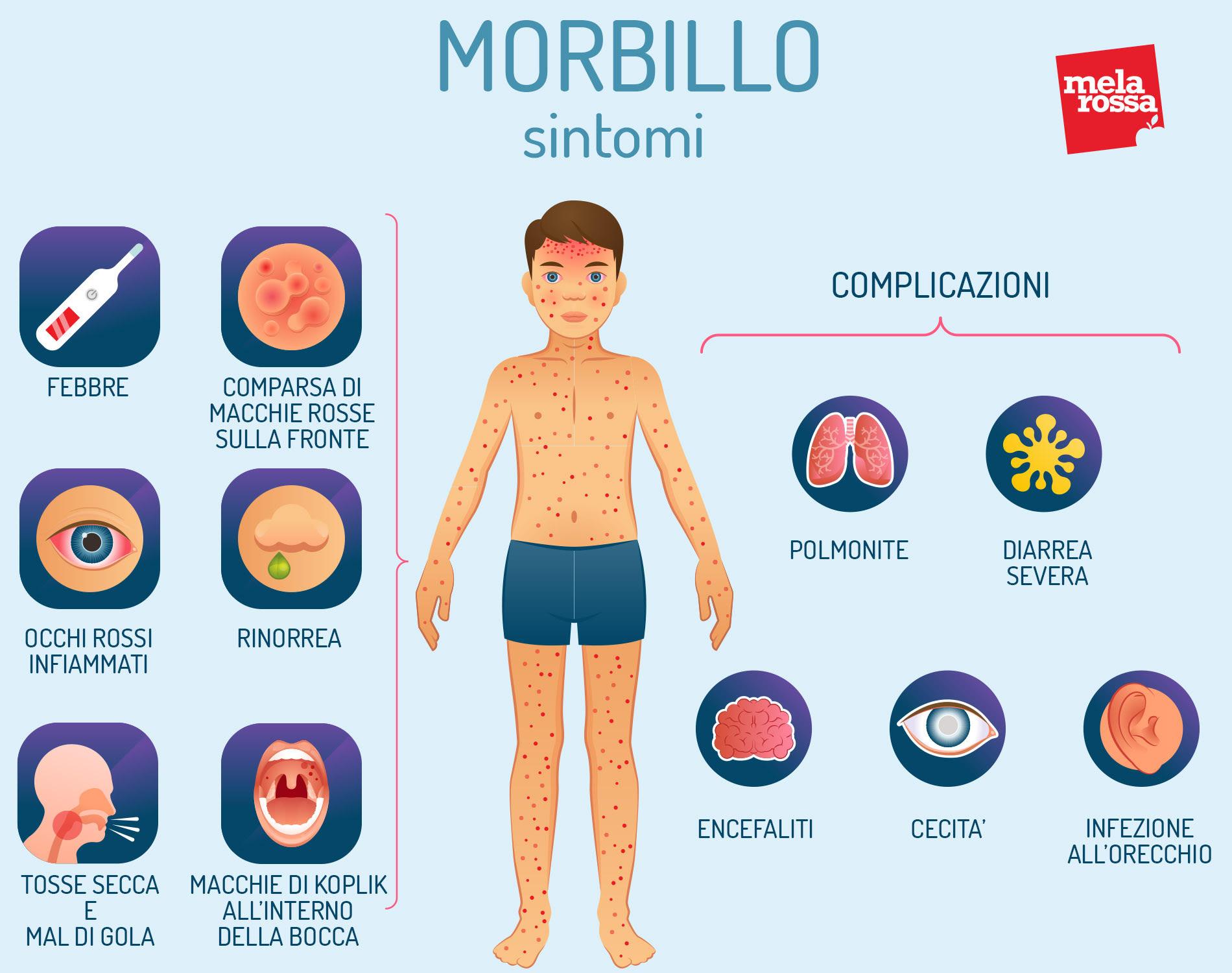 Morbillo: sintomi e complicazioni