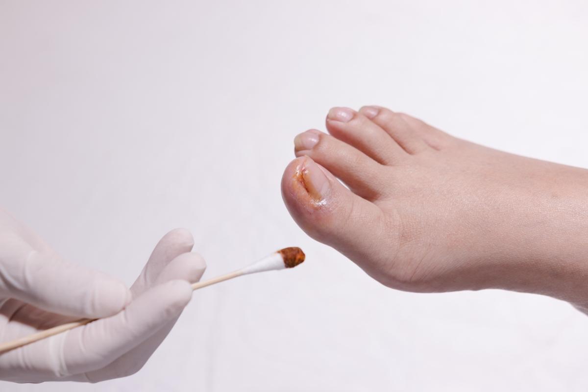 unghia incarnita: cos'è, cause, sintomi, trattamenti e prevenzione
