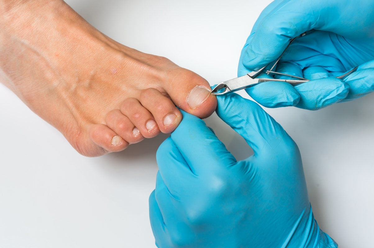 unghia incarnita: prevenzione
