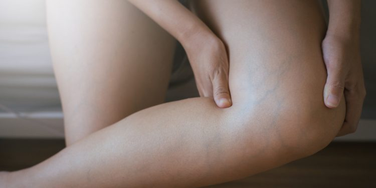 trombosi: cos'è, cause, sintomi e cure