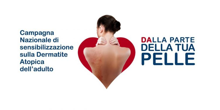 """Dermatite atopica: il 26 settembre parte la campagna """"Dalla parte della tua pelle"""""""