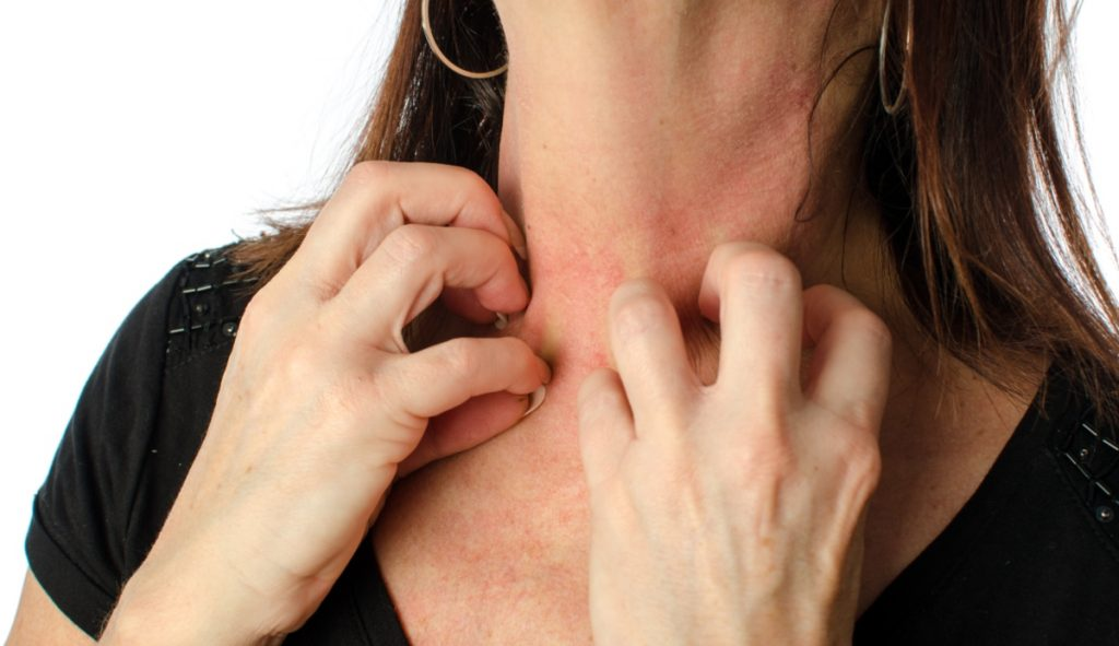 eczema: classificazione