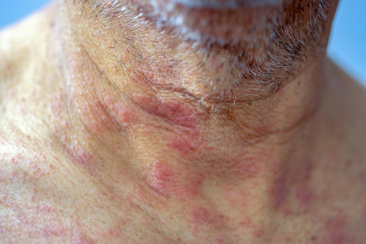 eczema complicazioni