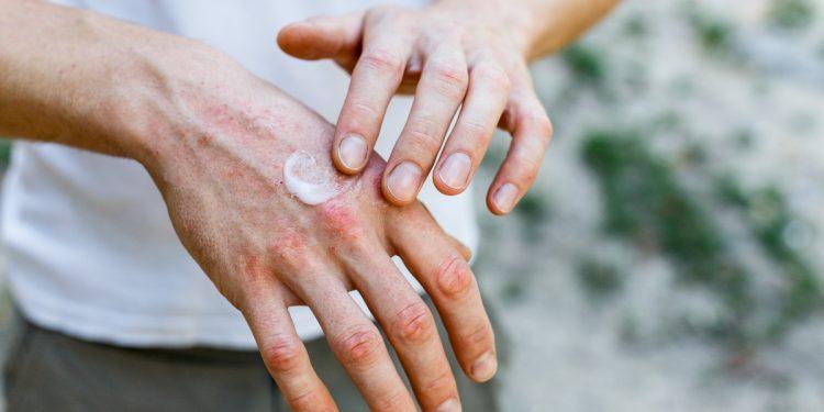 eczema: cos'è, cause, sintomi e cure