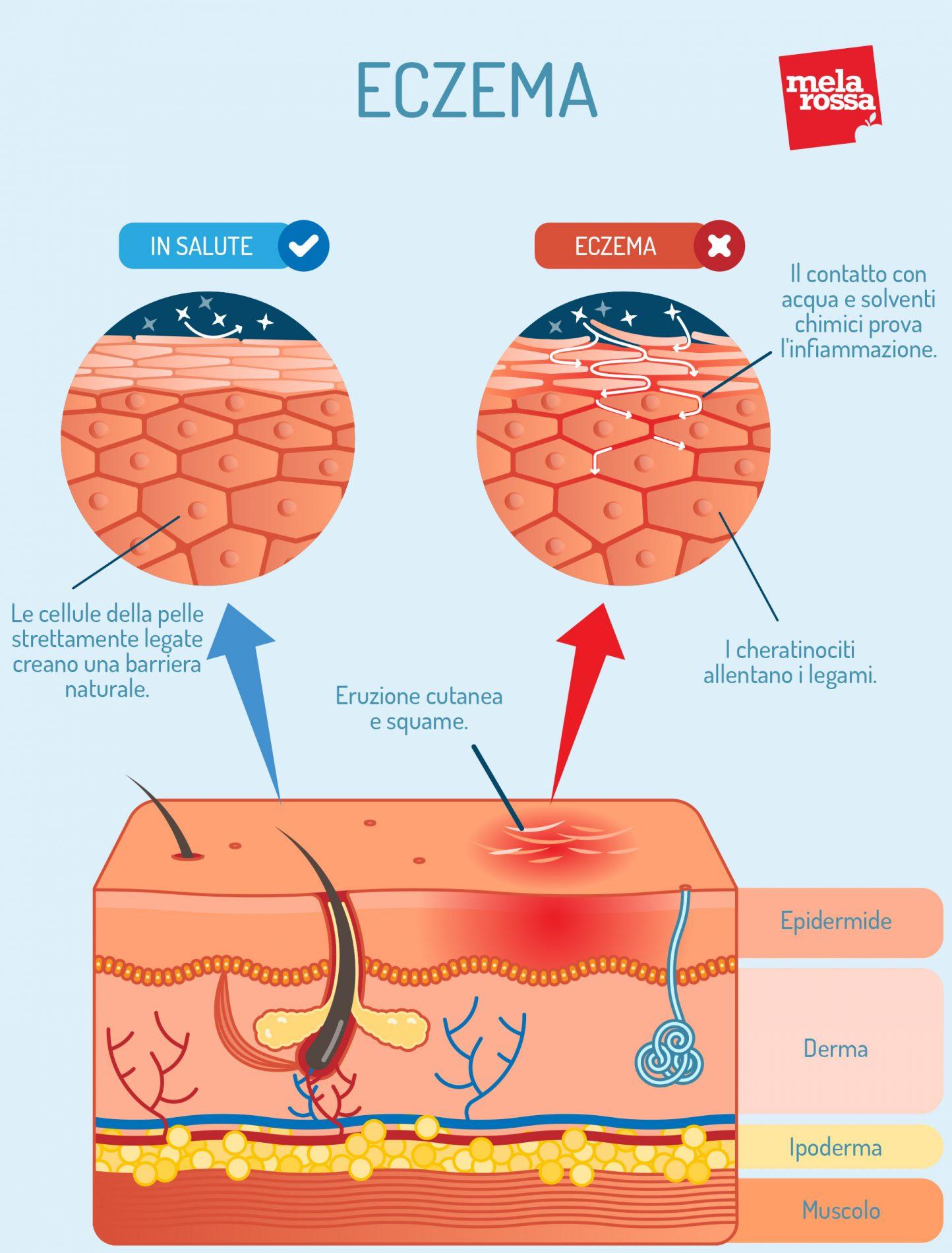 Eczema: cos'è