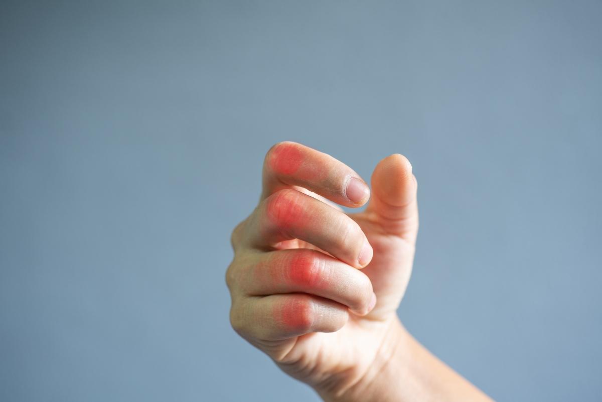 gotta: cos'è, cause, sintomi e cure