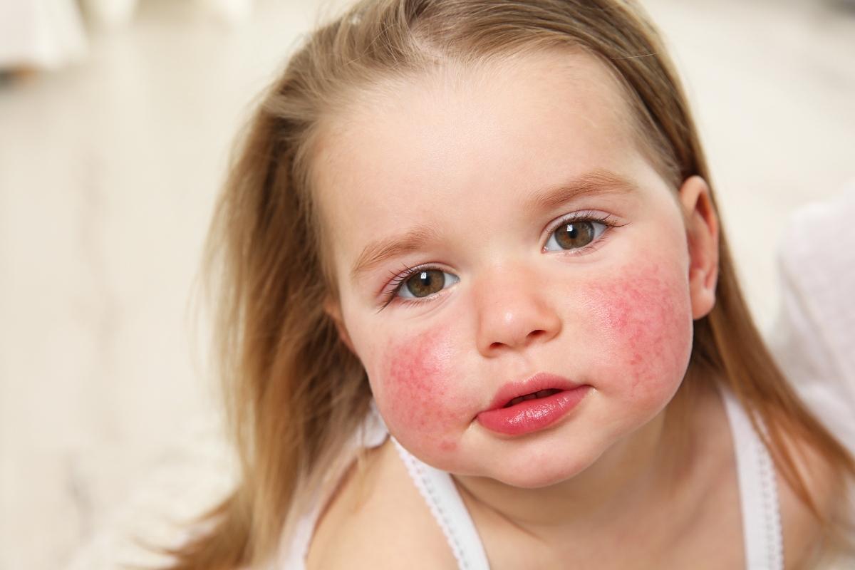 quinta malattia: cos'è, cause, sintomi e cure