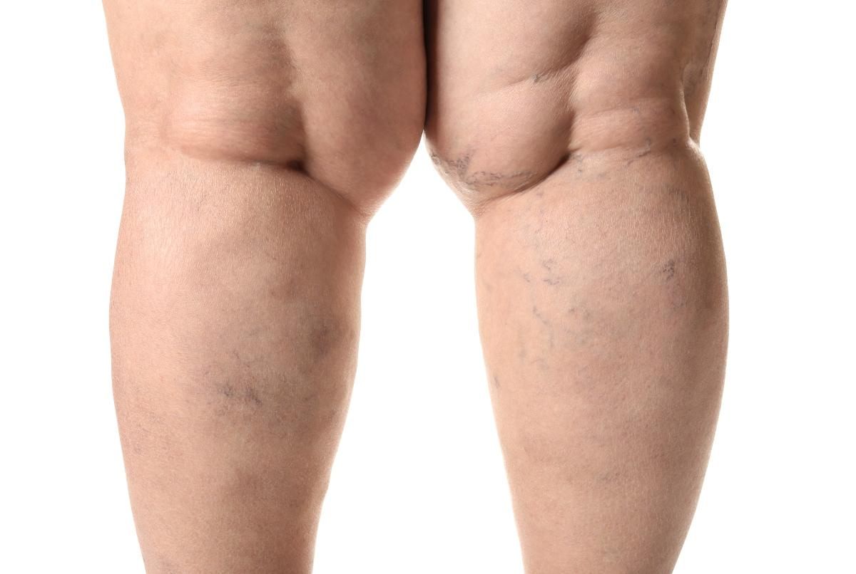 trombosi e obesità