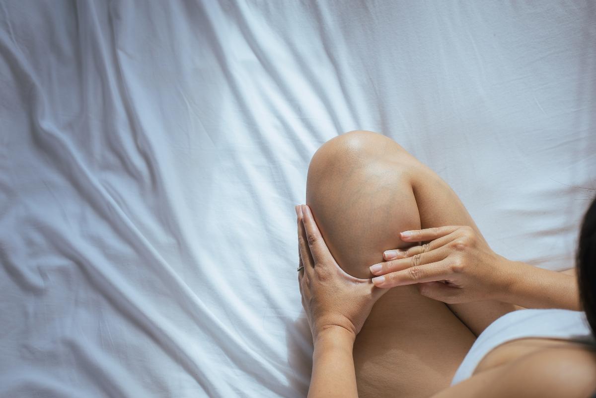 trombosi in gravidanza