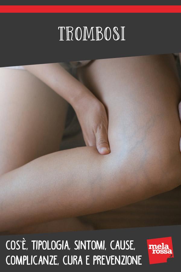 trombosi: cos'è, cause, sintomi, prevenzione e cure