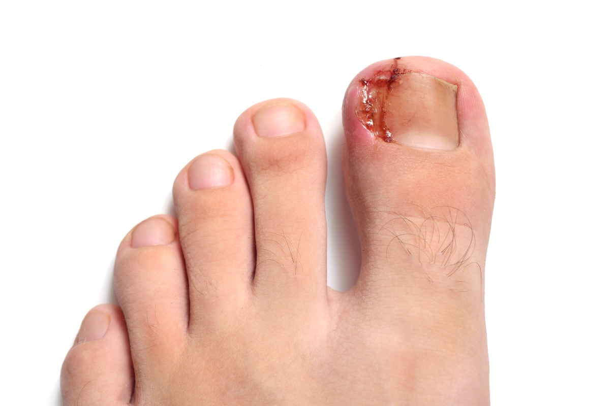 granuloma: unghia incarnita